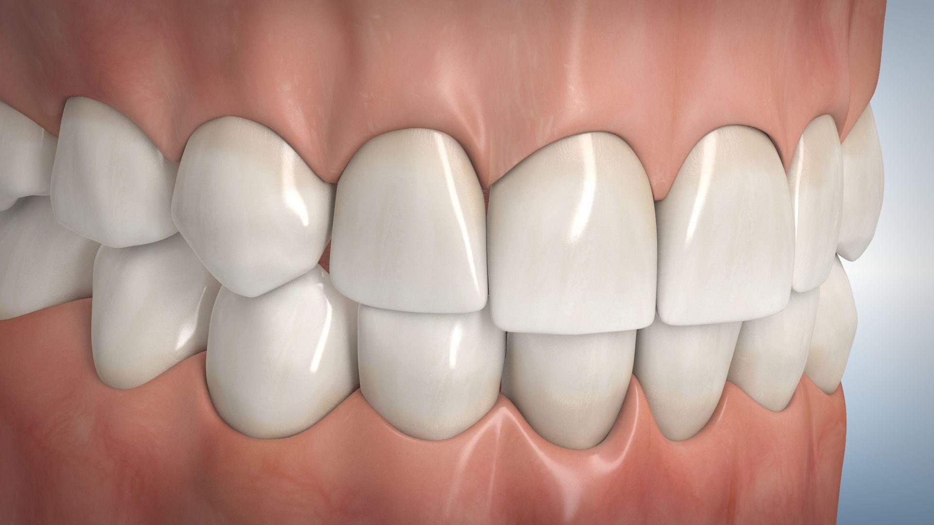 Professionelle Zahnreinigung beim Zahnarzt in Hauzenberg